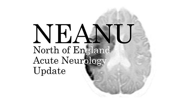 Solving Neurological Cases in Acute Medicine